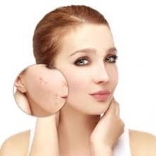 All About Acne with Wellness Berufe